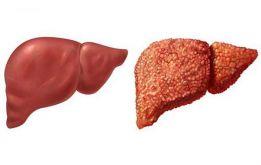 4 cây thuốc nam chữa bệnh xơ gan hiệu quả nhanh, lành tính