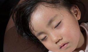 Trẻ ra quá nhiều mồ hôi- Xử lý thế nào