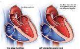Hở van động mạch chủ có cần mổ ?