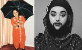 Chứng bệnh kỳ lạ khiến cô gái sở hữu bộ râu rậm rạp