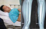 Chuyên gia ngành y nói gì về chấn thương của Hùng Dũng?