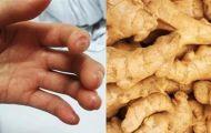 Bài thuốc từ gừng trị dứt điểm tê bì chân tay, nhức mỏi, châm chích mấy cũng khỏi hẳn