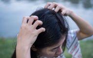 7 cách giúp tóc bớt bị gàu vào mùa đông