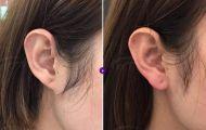 Tiêm filler vào vành tai, tài lộc chưa thấy đã phải viện xử lý hậu quả