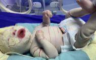 Bệnh hiếm khiến da trẻ sơ sinh mọc vảy sừng