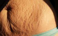 Bí quyết giúp giảm rạn da